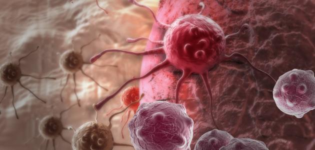 هل مرض السرطان وراثي