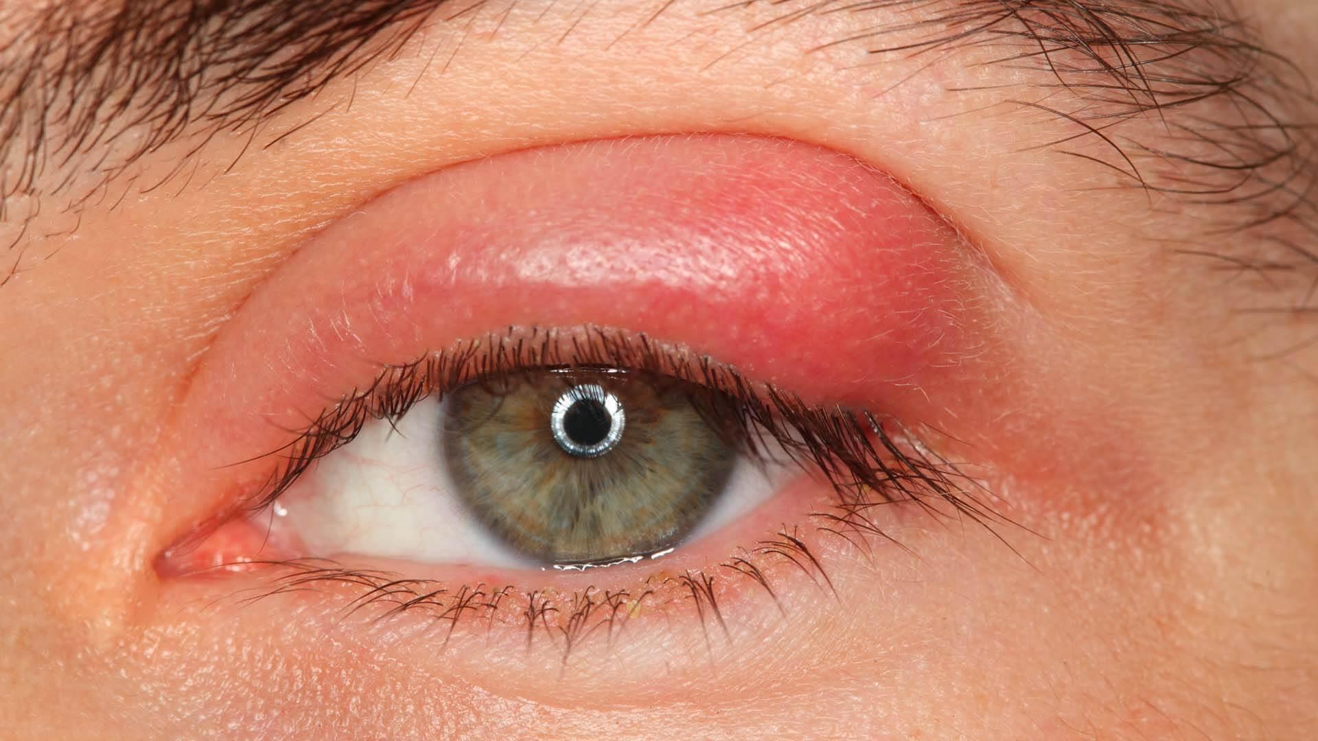 صوره التهاب العيون وعلاجها منزليا