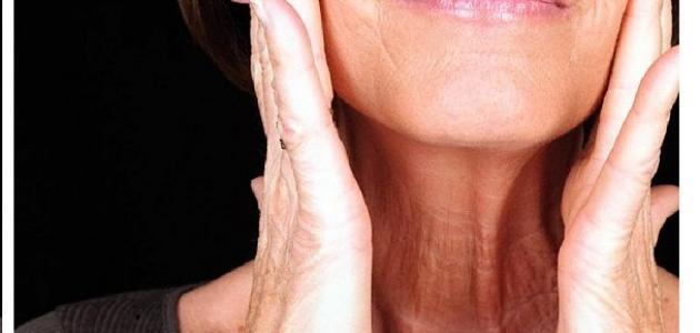 بالصور علاج ارتفاع هرمون الاستروجين 20160706 750