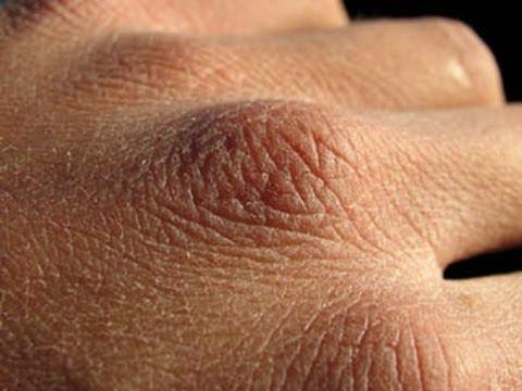 صوره كيفية علاج جفاف الجلد