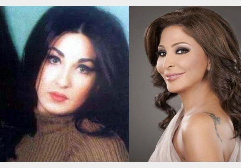 صورة صور اليسا قبل عمليات التجميل