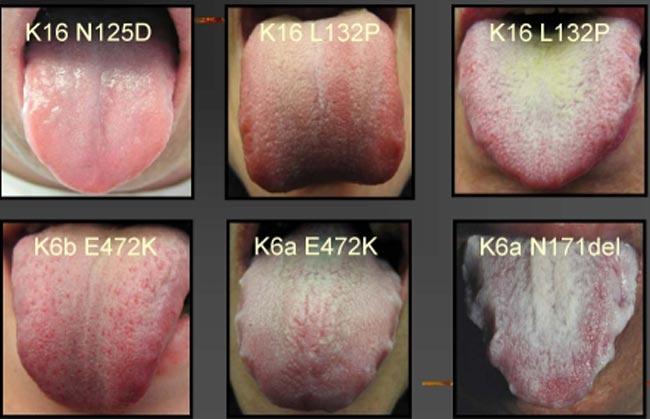 بالصور علاج فطريات في اللسان 20160709 1009