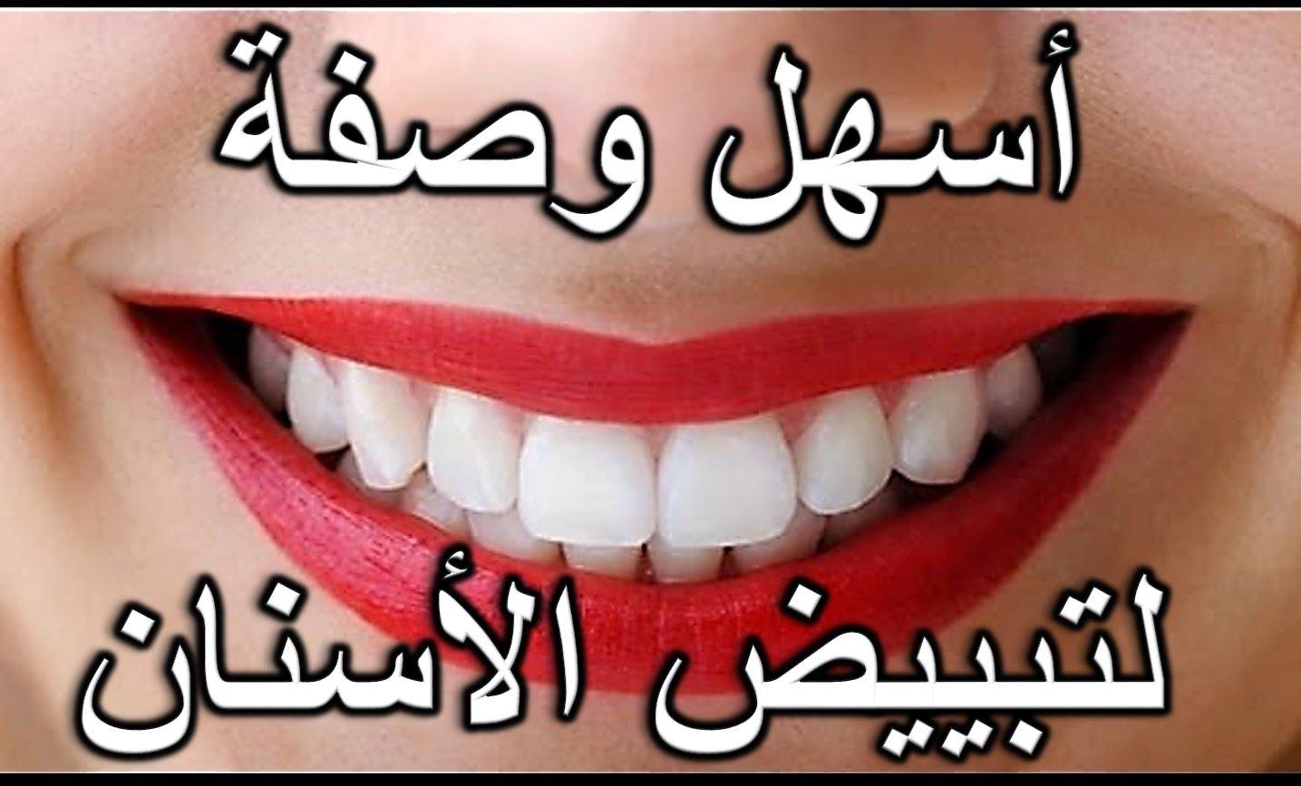 صوره علاج طبيعي لتبيض الاسنان