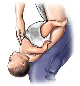 بالصور علاج الشرقة عند الرضع 20160710 2205