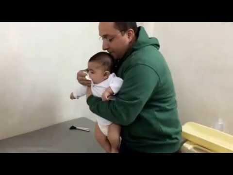 بالصور علاج الشرقة عند الرضع 20160710 2206
