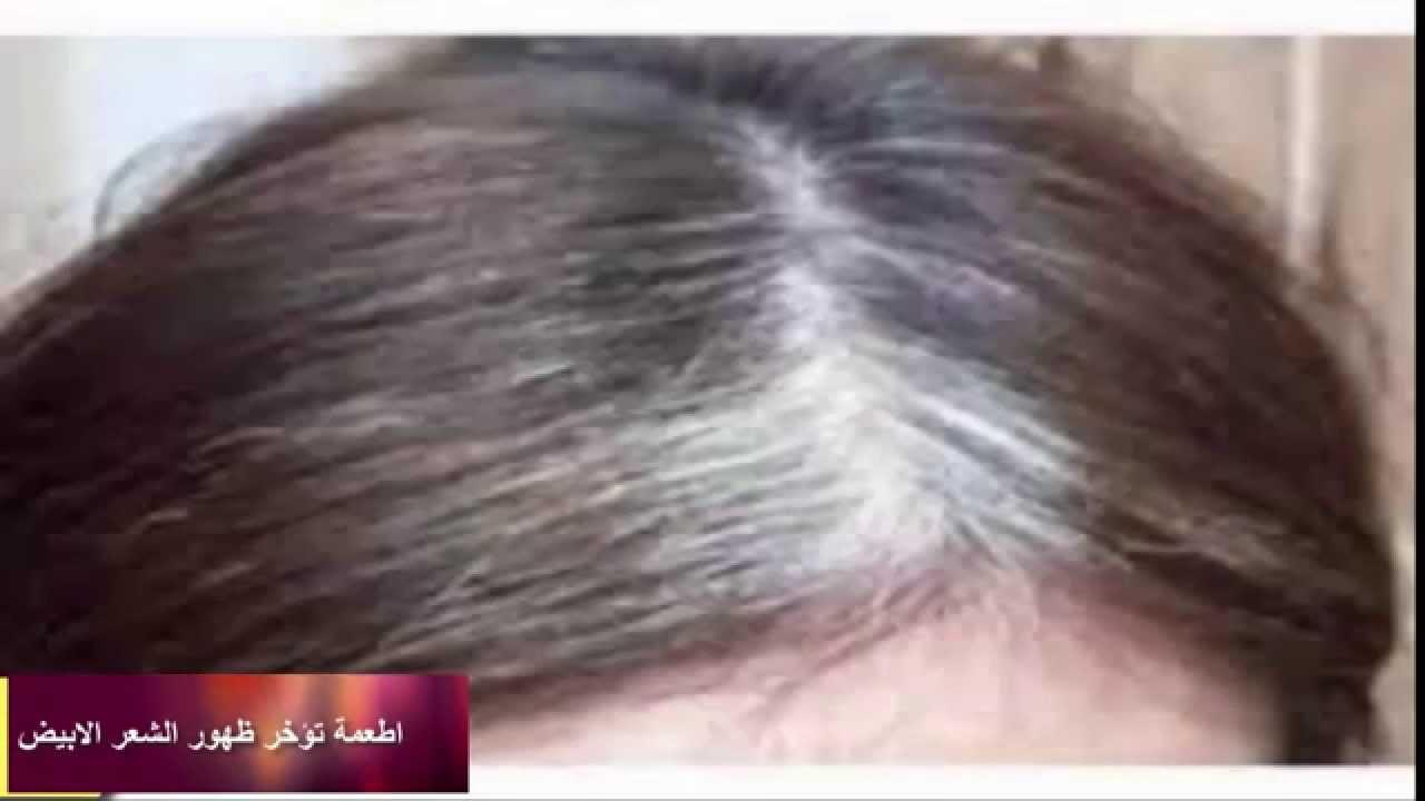 بالصور طرق ازالة الشعر الابيض 20160711 2292
