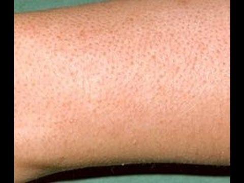 صورة التخلص من الشعر تحت الجلد والنقط السوداء