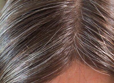 بالصور كيفية علاج الشعر الابيض 20160713 2742
