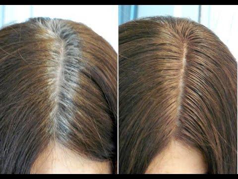 بالصور كيفية علاج الشعر الابيض 20160713 2743