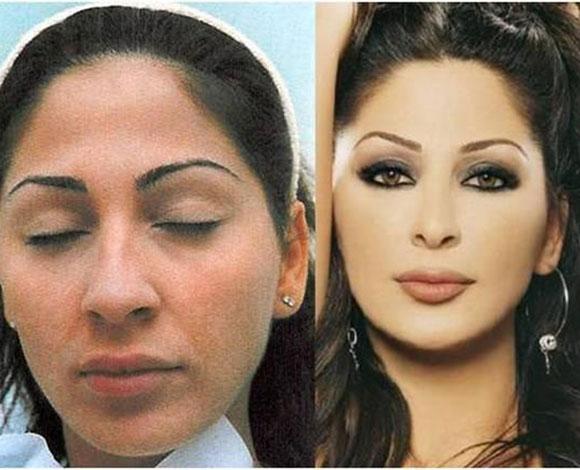 صور اليسا قبل عمليات التجميل