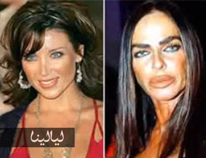 اسوا عمليات التجميل في التاريخ