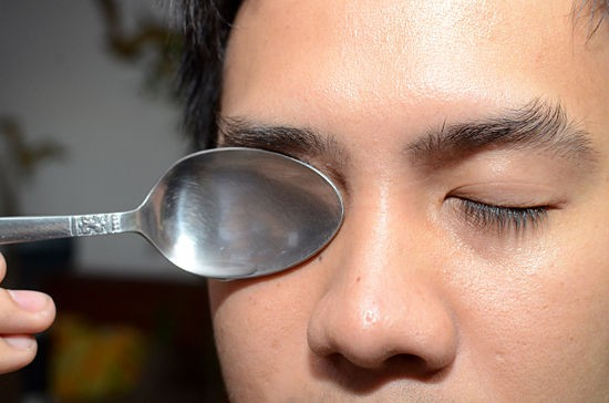 صوره علاج تورم العينين واسبابه