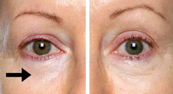بالصور علاج تورم العينين واسبابه 20160716 383