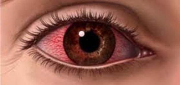 بالصور طرق علاج العين من الاحمرار 20160716 555