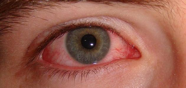 بالصور طرق علاج العين من الاحمرار 20160716 556