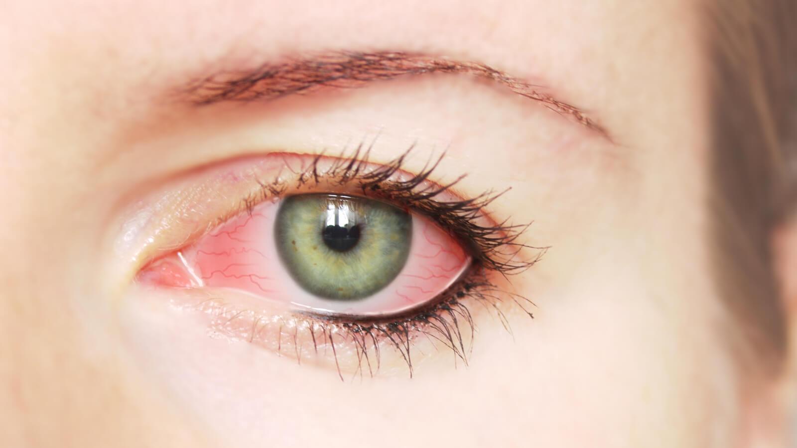 بالصور طرق علاج العين من الاحمرار 20160716 566