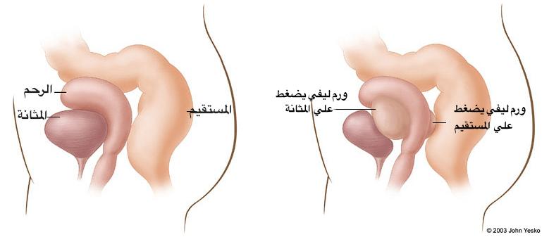 صورة الاورام الليفية في الرحم والحمل
