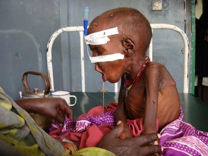 بالصور صور اطفال الصومال يحتضرون من الجوع 20160718 3187