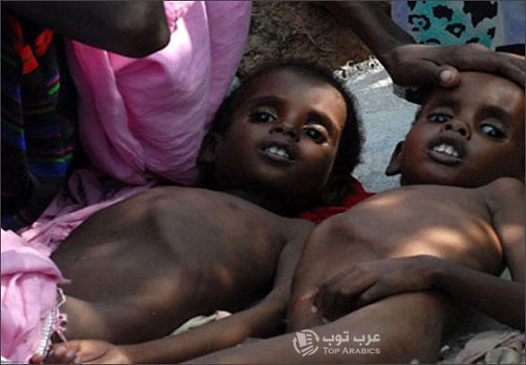 بالصور صور اطفال الصومال يحتضرون من الجوع 20160718 3188