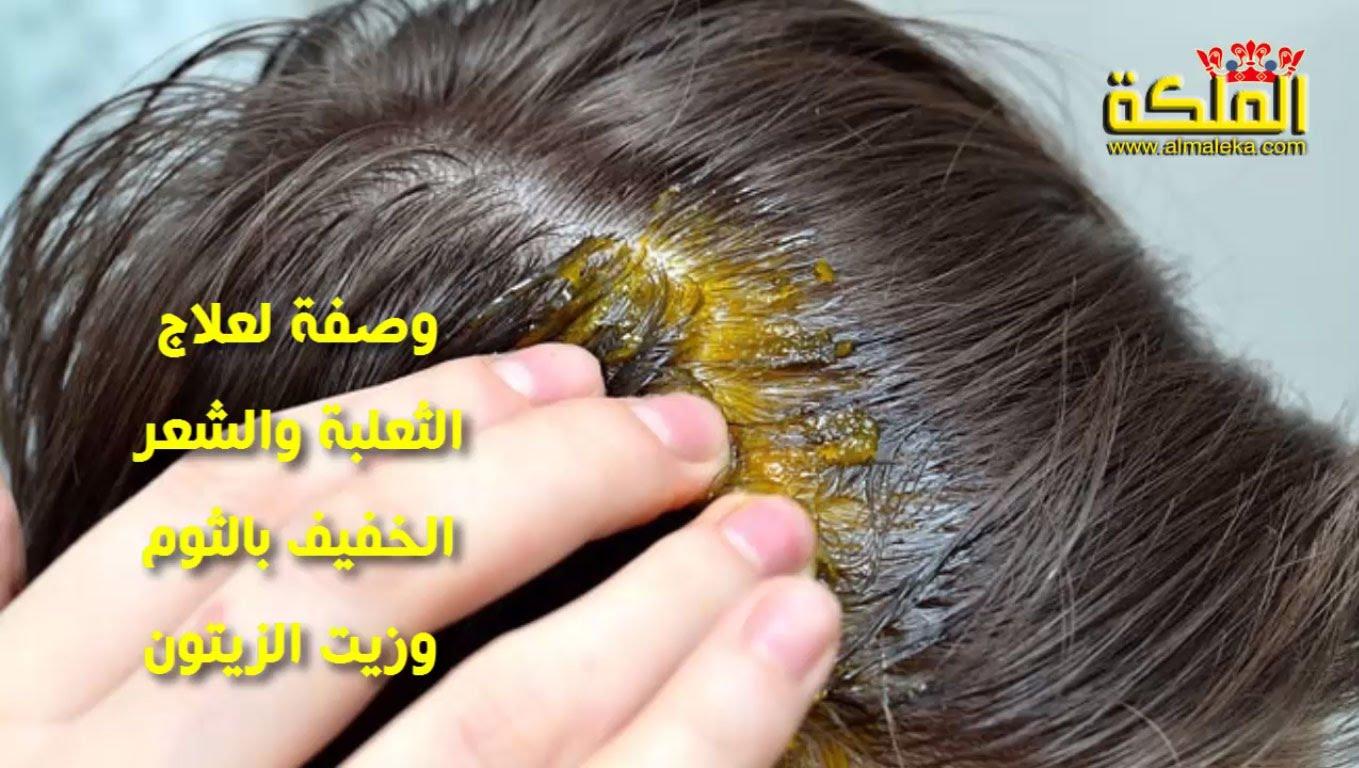 بالصور مرض الثعلبة عند الاطفال 20160723 12