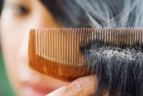 بالصور علاج الثعلبة في الشعر والتخلص منها نهائيا 20160723 250