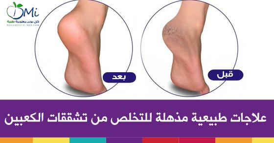 بالصور وصفة طبيعية و سهلة لعلاج تشققات القدمين 20160723 67