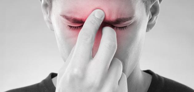 بالصور الجيوب الانفية علاج التهاب الجيوب المزمن 20160725 13