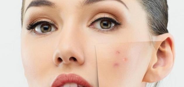 صورة ازالة البقع من الوجه