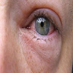 بالصور تقرير عن قرحة العين اسبابه وعلاجها