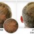 بالصور افضل منتج لانبات الشعر IL5ITsQ 70x70