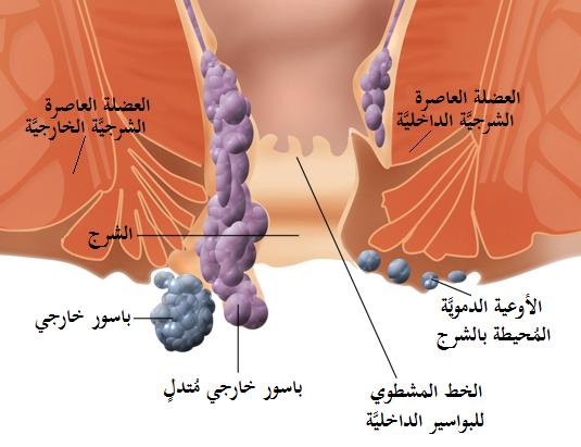 بالصور افضل مسكن لمرض البواسير Internal and external hemorrhoids ar
