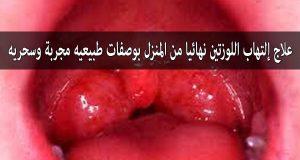 صوره علاج التهاب اللوزتين فعال