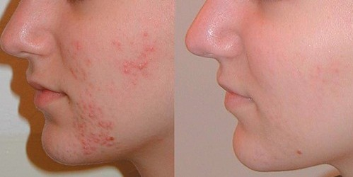 http://www.mysite.ma/wp-content/uploads/2013/04/clearlight_acne_treatments1-499x250.jpg